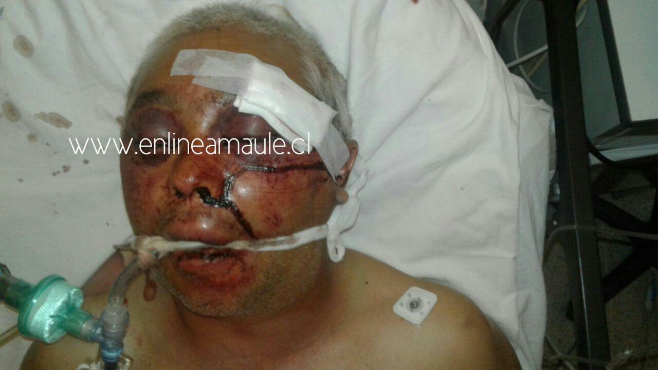 EXCLUSIVO: VIOLENTO ASALTO DE TRANSEUNTES, TERMINA CON UN MUERTO Y UN HERIDO GRAVE EN TALCA