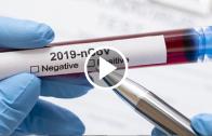 Doctor en biología molecular y celular de la UTALCA explicó que es poco probable tener una reinfección de COVID-19